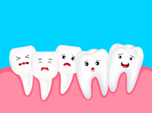 Causes And Treatment For Crowded Teeth