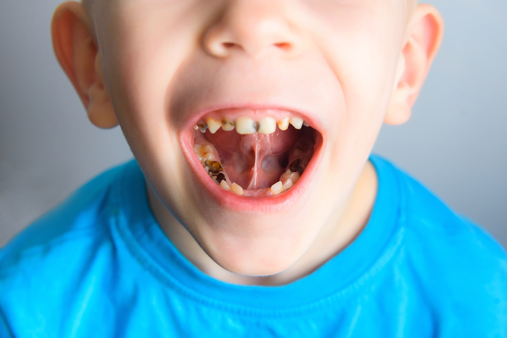 Early Stages Of Tooth Decay