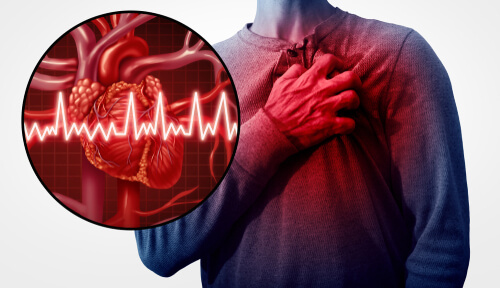 untreated tooth root canal infection can cause heart attack