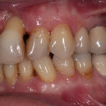 early periodontitis can be reversed